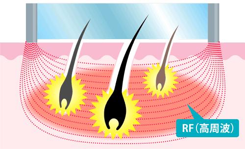 RFの仕組み図解
