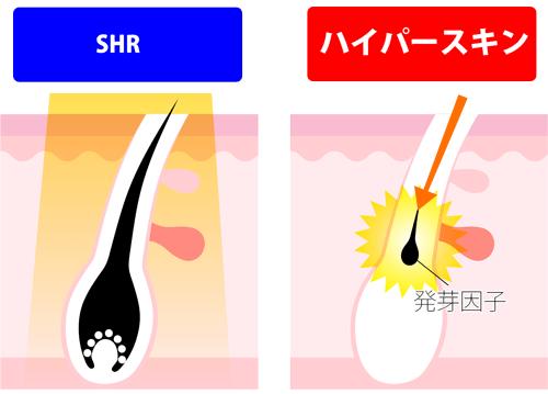SHRとハイパースキンの比較図解
