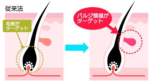 NPL脱毛の説明